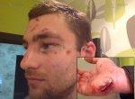 В Ростове неизвестные жестоко избили участника Олимпийских игр по академической гребле