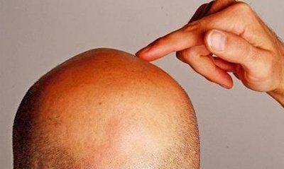 Создан охлаждающий шлем, который спасет от потери волос при химиотерапии