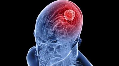 Учёные научились подсвечивать раковые клетки в процессе удаления опухолей