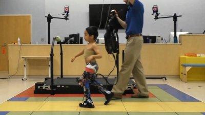 Экзоскелеты позволят улучшить мобильность детей с церебральным параличом