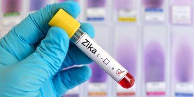 В США предлагают использовать вирус Зика для борьбы с раком
