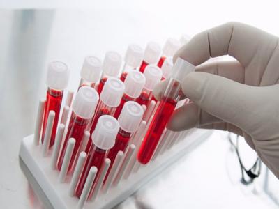 В Белой Калитве состаялась акция в подрежку больных СПИДом