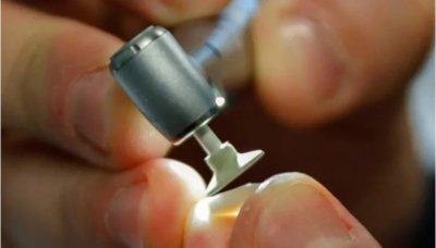 Новые зубные пломбы позволят реже ходить к стоматологу