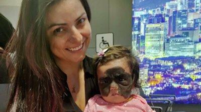 Девочка из США с пятном на лице нашла общий язык с краснодарским хирургом