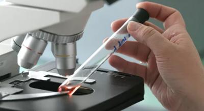 Роспотребнадзор располагает оборудованием для диагностики коронавируса