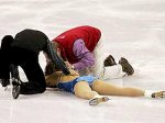 Канадский фигурист порезал коньком лицо партнерше
