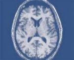 Исследование: человеческий мозг может воссоздавать нейроны