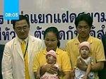 Тайские врачи первыми в мире разделили сиамских близнецов со сросшимися сердцами и печенью