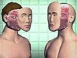 Женщина, которой впервые в мире пересадили лицо, появилась на публике